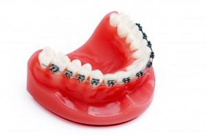 Dental Implants Long Island